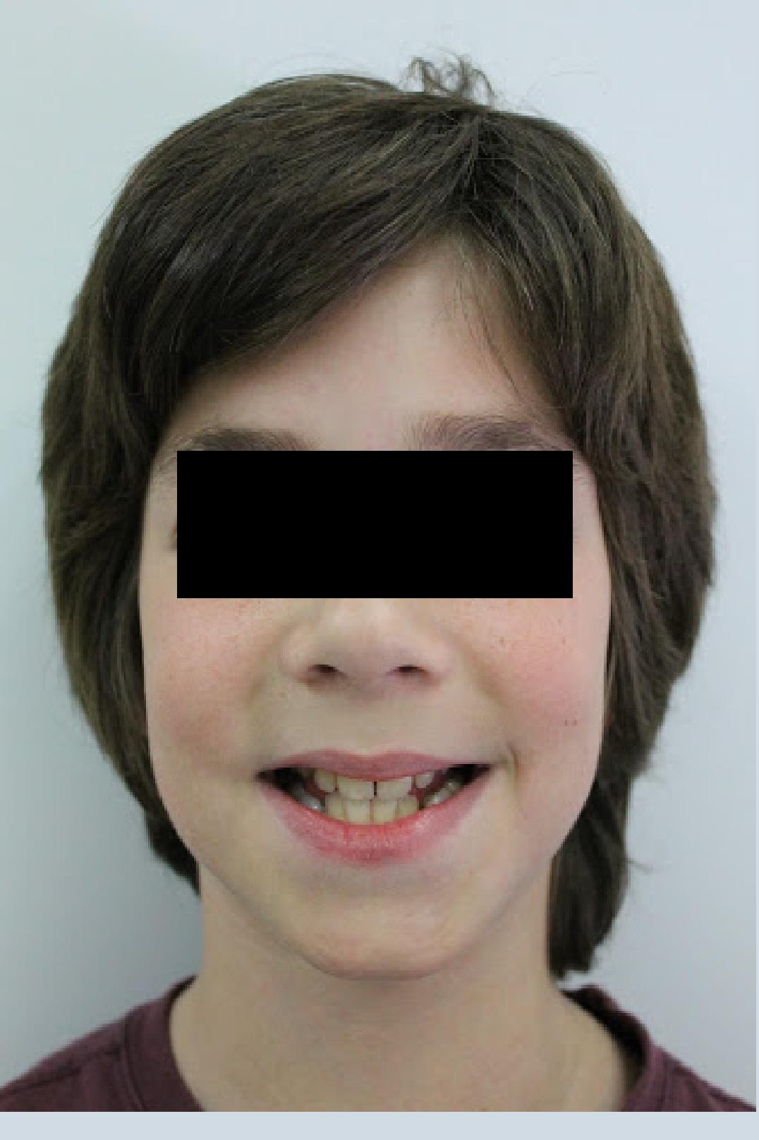 Caso_Clinico_Ortodontia_2_1