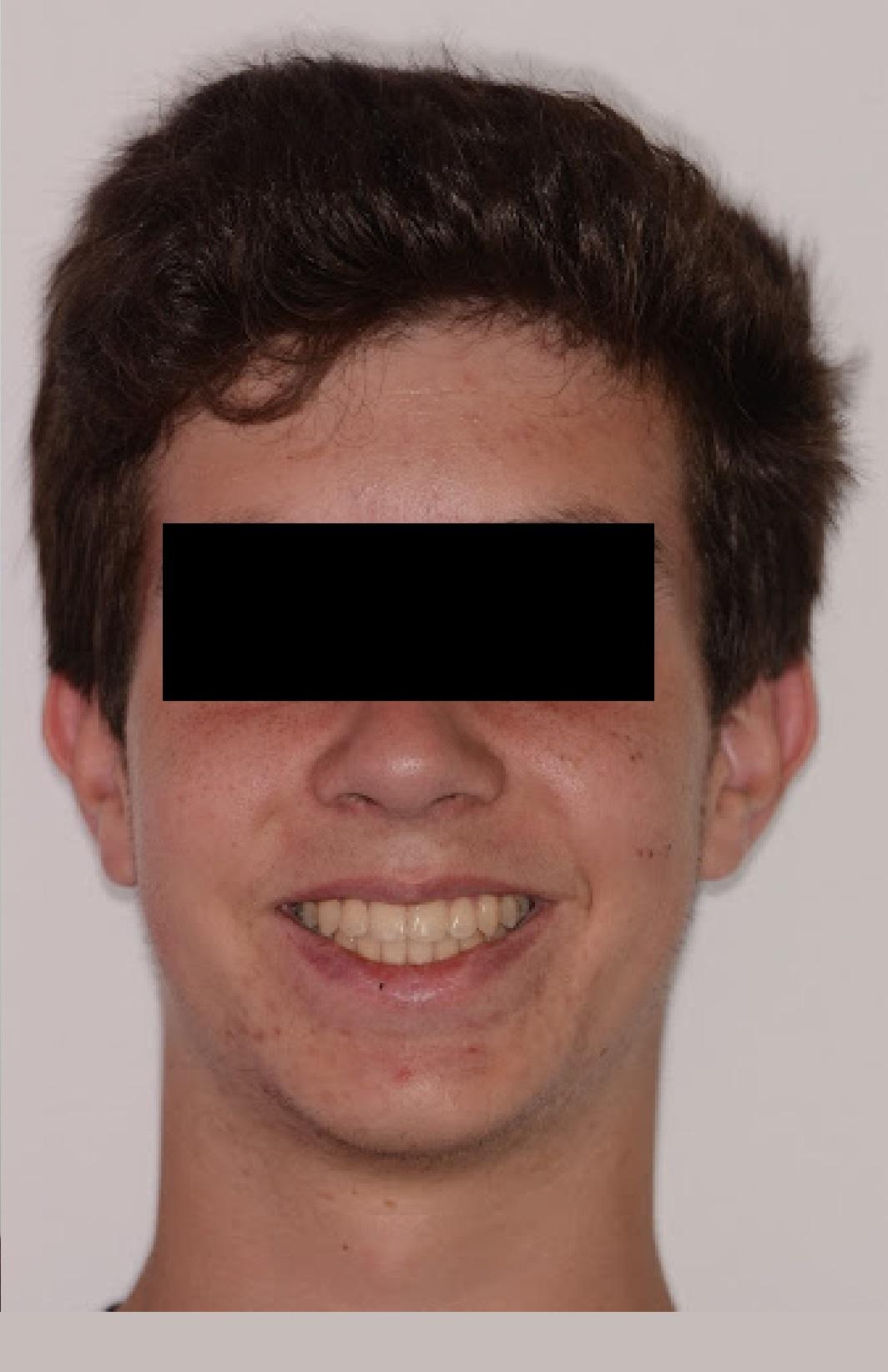 Caso_Clinico_Ortodontia_2_2