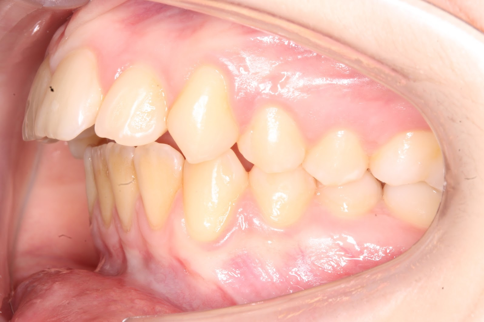 Caso_Clinico_Ortodontia_3_1