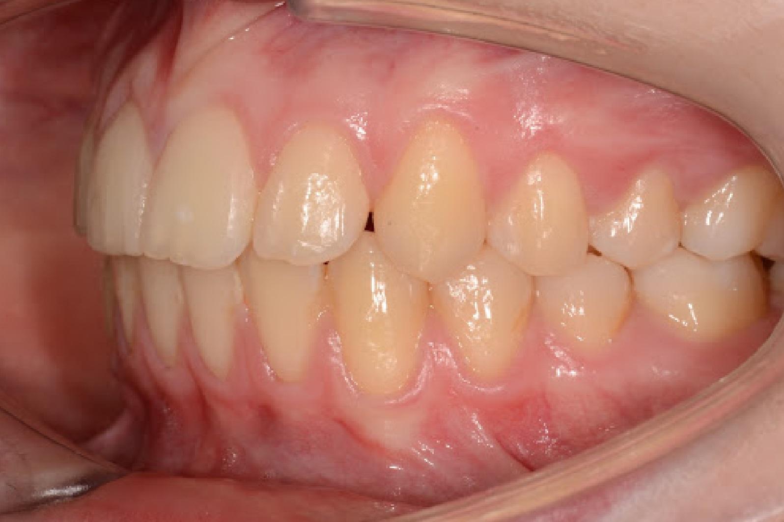 Caso_Clinico_Ortodontia_3_2