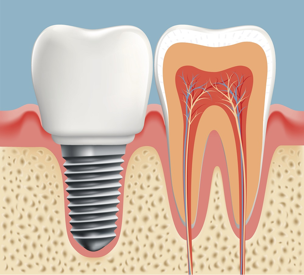 Human tooth in cross-section and dental implant.